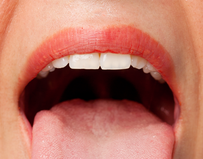 mucositis higiene bucal