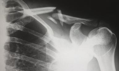 Lesiones óseas en el mieloma múltiple