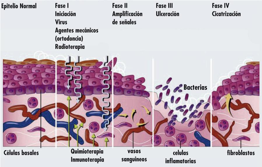 Fases de la mucositis