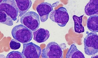leucemia mieloide crónica artículo blog
