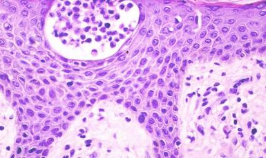 micosis fungoide y Sindrome de Sézary